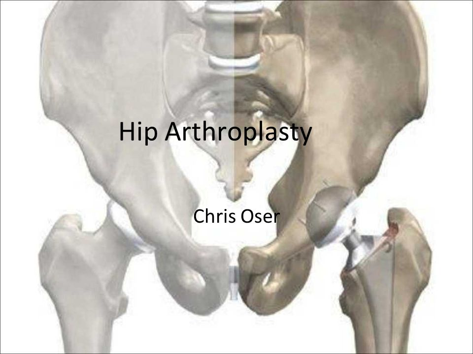 Hip Arthroplasty Chris Oser
