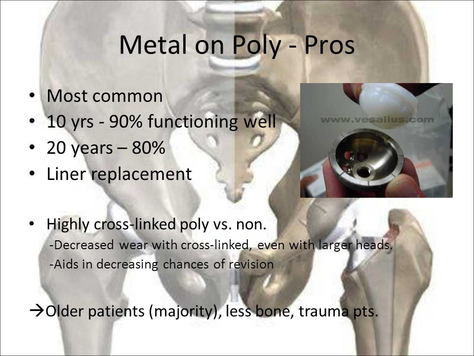 Metal on Poly - Pros Most common 10 yrs - 90% functioning well 20 years – 80% Liner replacement Highly cross-linked poly vs.