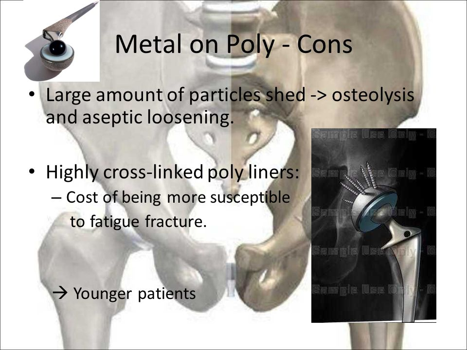 Metal on Poly - Cons Large amount of particles shed -> osteolysis and aseptic loosening.