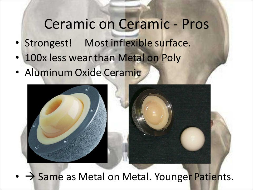 Ceramic on Ceramic - Pros Strongest.Most inflexible surface.