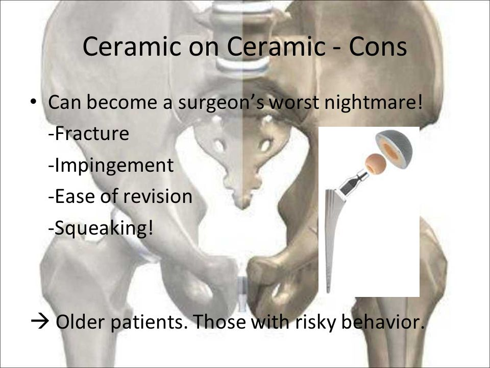 Ceramic on Ceramic - Cons Can become a surgeon's worst nightmare.