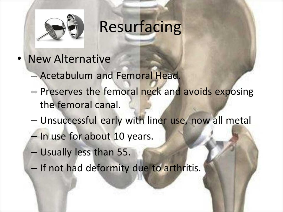 Resurfacing New Alternative – Acetabulum and Femoral Head.