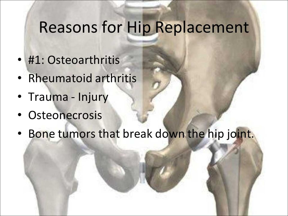 Reasons for Hip Replacement #1: Osteoarthritis Rheumatoid arthritis Trauma - Injury Osteonecrosis Bone tumors that break down the hip joint.