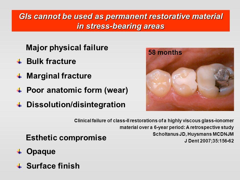 Major physical failure Bulk fracture Marginal fracture Poor anatomic form (wear) Dissolution/disintegration Clinical failure of class-II restorations