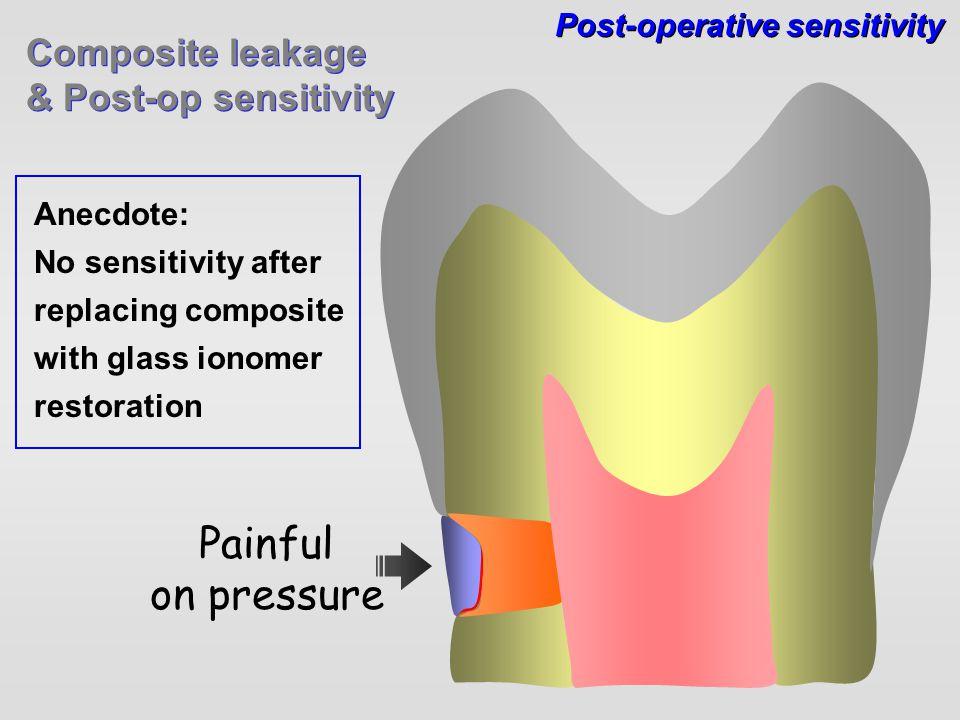 Composite leakage & Post-op sensitivity Composite leakage & Post-op sensitivity Post-operative sensitivity Painful on pressure Anecdote: No sensitivit