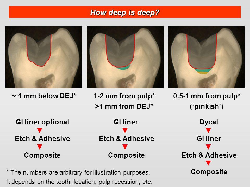 How deep is deep? ~ 1 mm below DEJ*0.5-1 mm from pulp* ('pinkish') 1-2 mm from pulp* >1 mm from DEJ* GI liner optional Etch & Adhesive Composite GI li