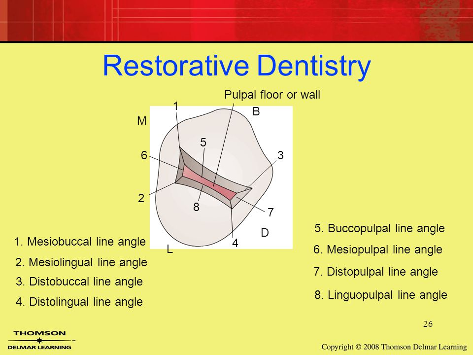 26 M B D L Restorative Dentistry Pulpal floor or wall 1 2 6 8 5 3 7 4 1.