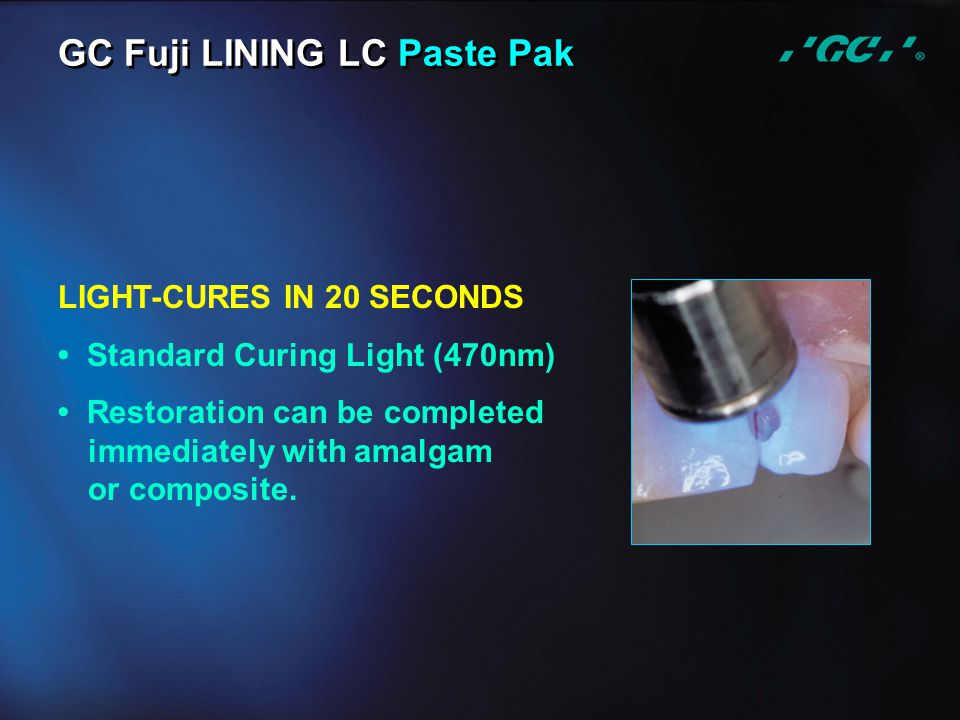LIGHT-CURES IN 20 SECONDS Standard Curing Light (470nm) Restoration can be completed immediately with amalgam or composite. GC Fuji LINING LC Paste Pa