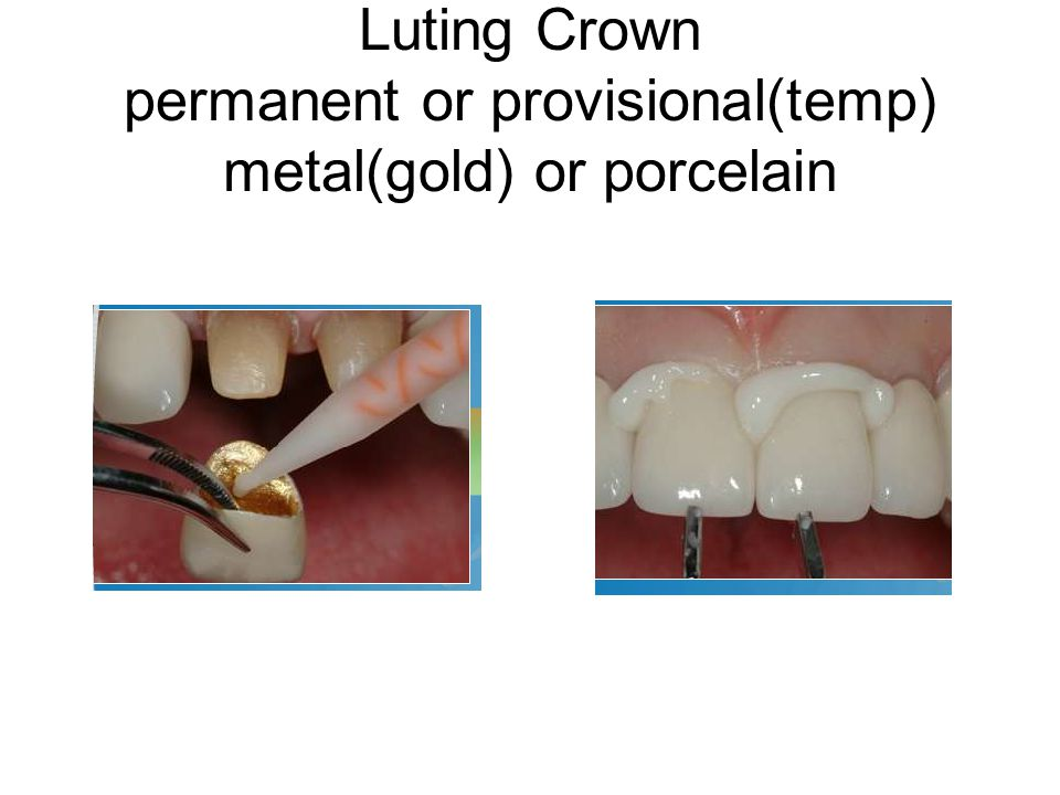 Luting Crown permanent or provisional(temp) metal(gold) or porcelain