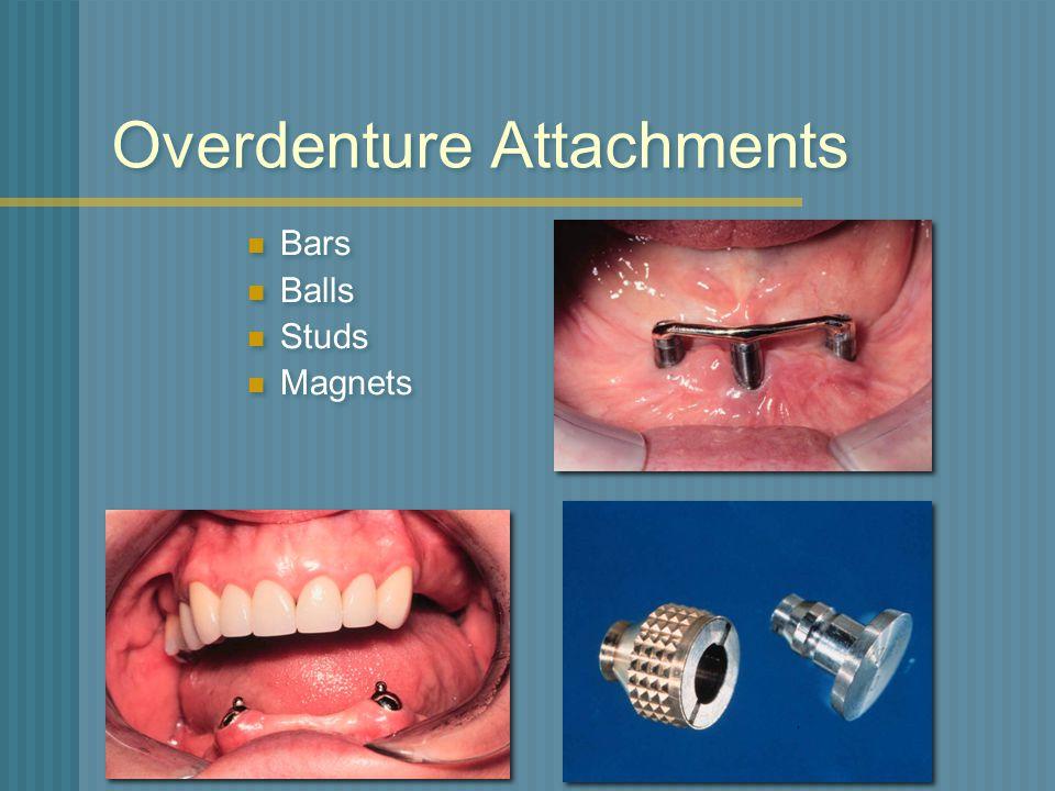 Overdenture Attachments Bars Balls Studs Magnets Bars Balls Studs Magnets
