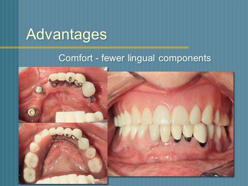 Advantages Comfort - fewer lingual components
