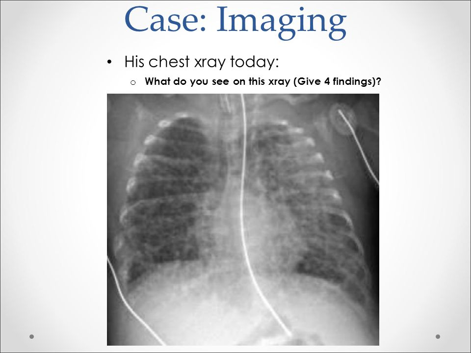 Case: Imaging o What do you see on his xray.