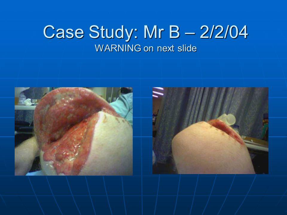 Case Study: Mr B – 2/2/04 WARNING on next slide