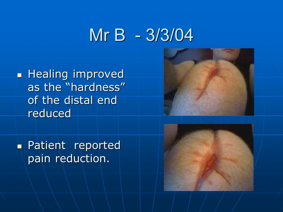 """Mr B - 3/3/04 Healing improved as the """"hardness"""" of the distal end reduced Healing improved as the """"hardness"""" of the distal end reduced Patient report"""