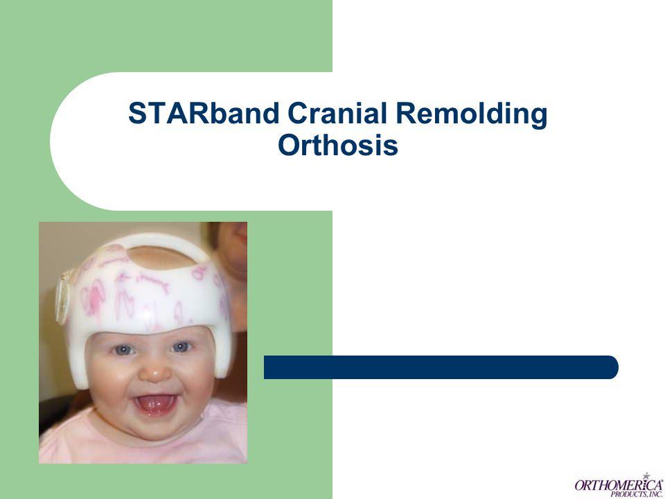 STARband Bi-valve Deformational scaphycephaly.Following surgery for craniosynostosis.