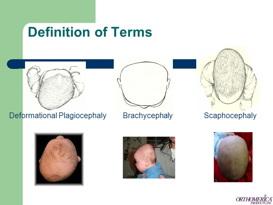 BRACHYCEPHALY Bilateral occipital flattening or central flattening Frontal bossing High cranial vault Width of head is greater than 85% of the length and may exceed 100% (cephalic ratio)