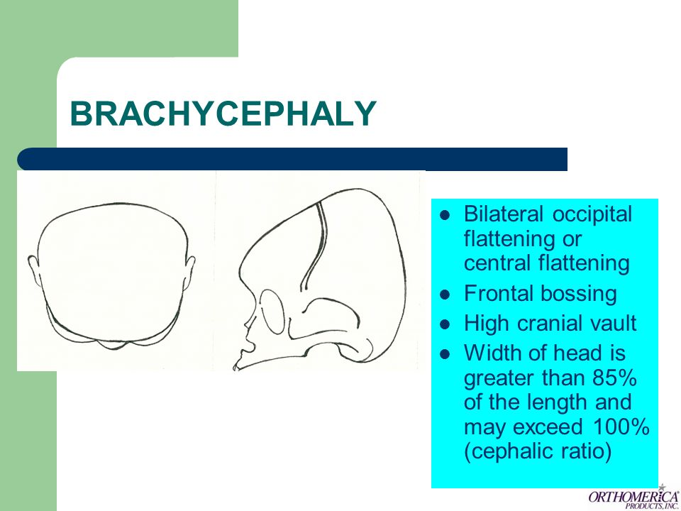 Moderate to severe head plagiocephaly Moderate to severe brachycephaly Continued post-operative remodeling for mild to severe head deformations 1/2 liner allows adjustability over shunts