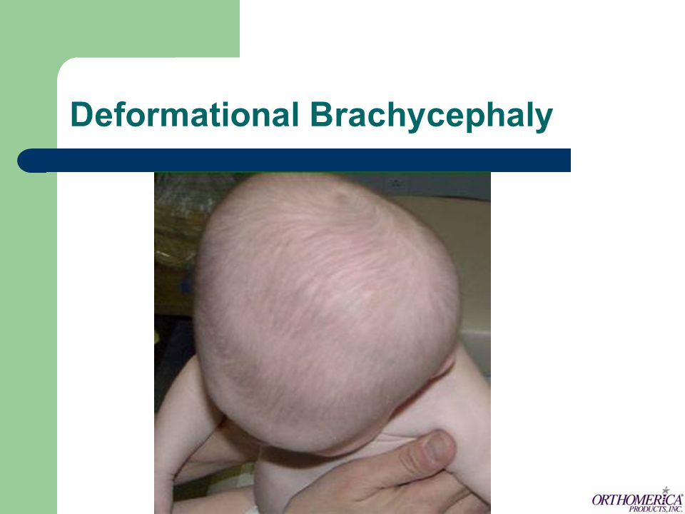 How does the STARband improve the head shape of babies with brachycephaly.