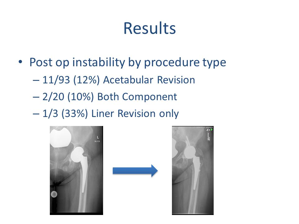 Results Post op instability by procedure type – 11/93 (12%) Acetabular Revision – 2/20 (10%) Both Component – 1/3 (33%) Liner Revision only