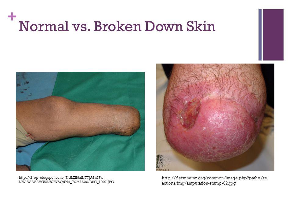 + Normal vs. Broken Down Skin http:// dermnetnz.org/common/image.php?path =/ re actions/img/amputation-stump-02.jpg http://2.bp.blogspot.com/-7ldLZil9