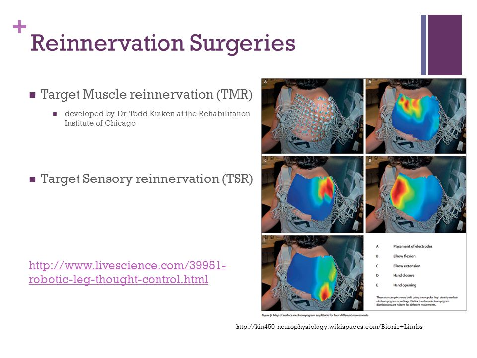 + Reinnervation Surgeries Target Muscle reinnervation (TMR) developed by Dr.