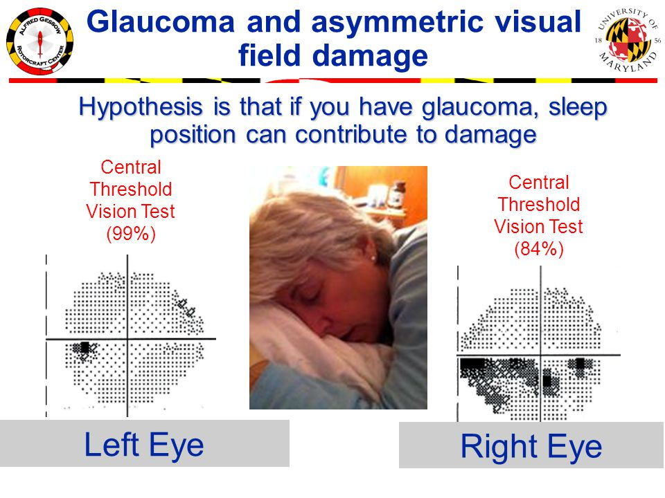 Right Eye Left Eye Central Threshold Vision Test (99%) Central Threshold Vision Test (84%) Glaucoma and asymmetric visual field damage Hypothesis is that if you have glaucoma, sleep position can contribute to damage