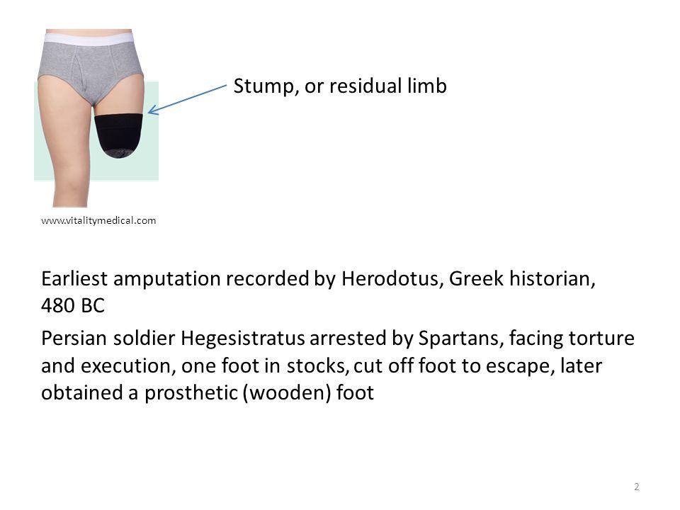 Disarticulation: Amputation between bone surfaces 3 www.cdha.nshealth.ca 2% 33% 1% 54% 3% Upper limb amputations: 7%
