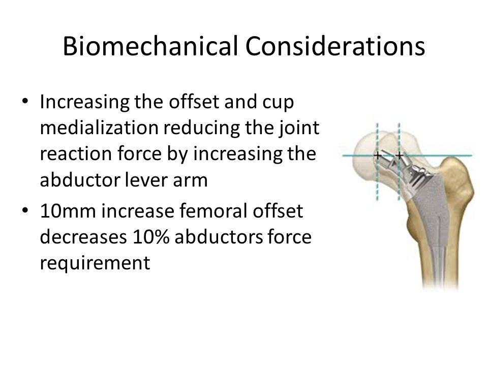 Biomechanical Considerations Increasing the offset and cup medialization reducing the joint reaction force by increasing the abductor lever arm 10mm increase femoral offset decreases 10% abductors force requirement