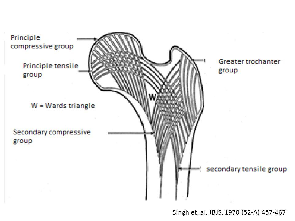 Singh et. al. JBJS. 1970 (52-A) 457-467