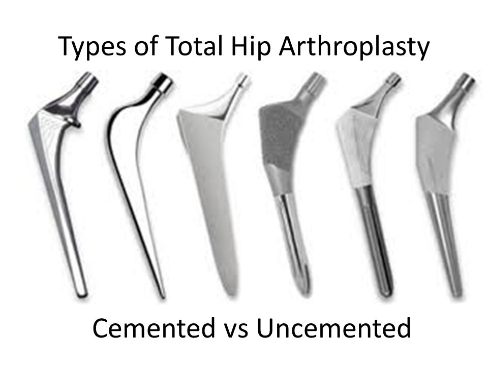 Types of Total Hip Arthroplasty Cemented vs Uncemented