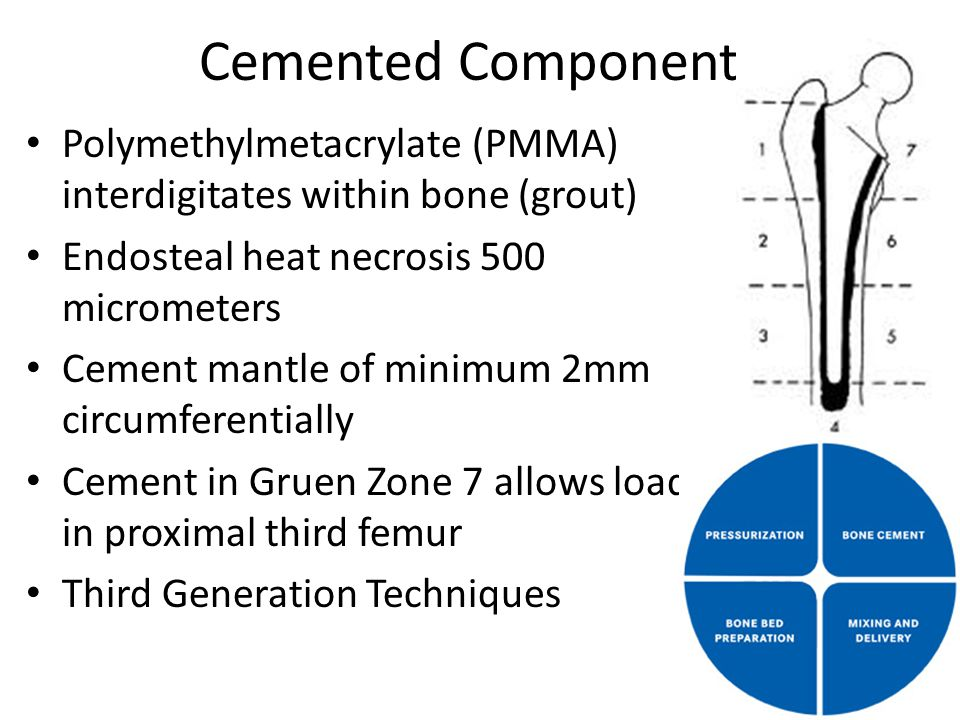 Cemented Components Polymethylmetacrylate (PMMA) interdigitates within bone (grout) Endosteal heat necrosis 500 micrometers Cement mantle of minimum 2mm circumferentially Cement in Gruen Zone 7 allows load in proximal third femur Third Generation Techniques