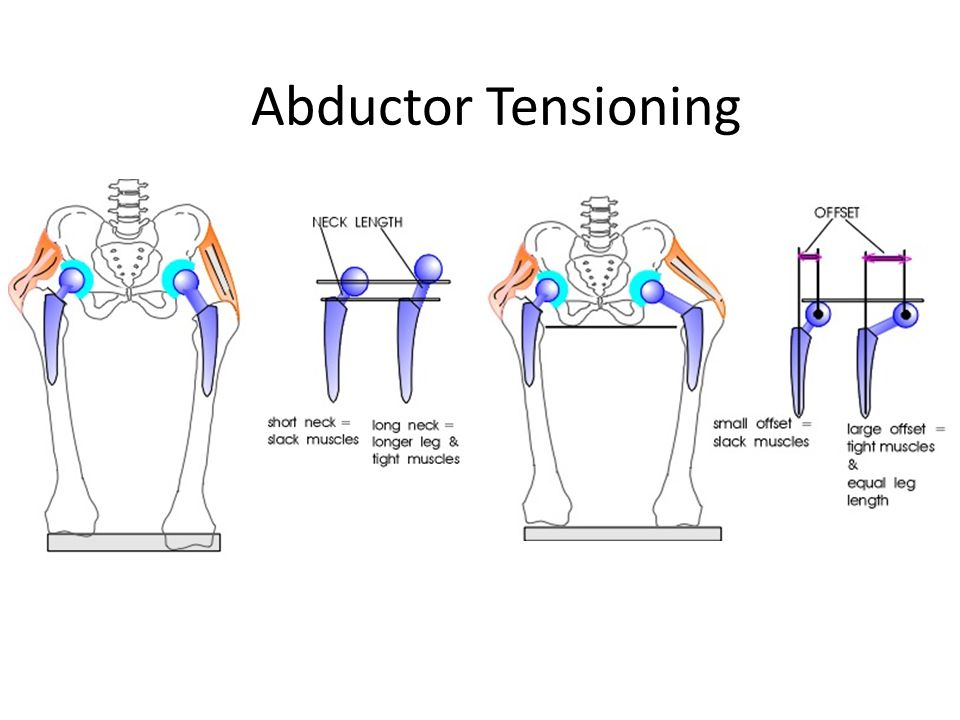 Abductor Tensioning
