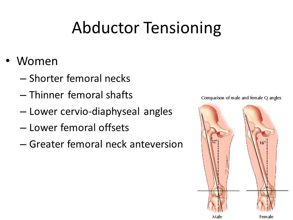 Women – Shorter femoral necks – Thinner femoral shafts – Lower cervio-diaphyseal angles – Lower femoral offsets – Greater femoral neck anteversion
