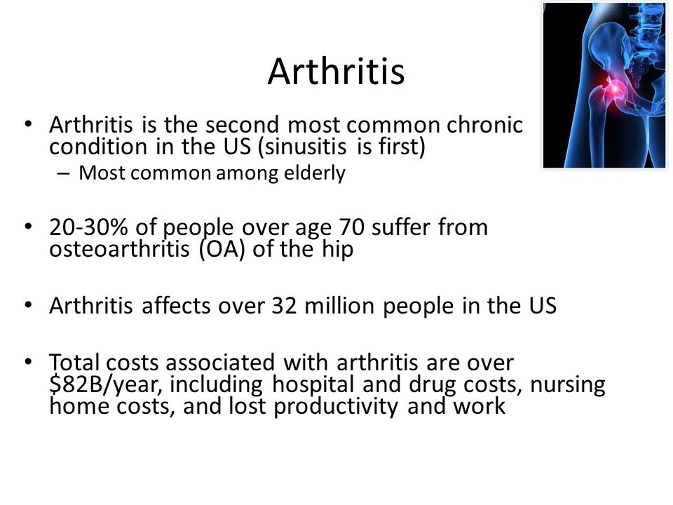 Arthritis Arthritis is the second most common chronic condition in the US (sinusitis is first) – Most common among elderly 20-30% of people over age 70 suffer from osteoarthritis (OA) of the hip Arthritis affects over 32 million people in the US Total costs associated with arthritis are over $82B/year, including hospital and drug costs, nursing home costs, and lost productivity and work