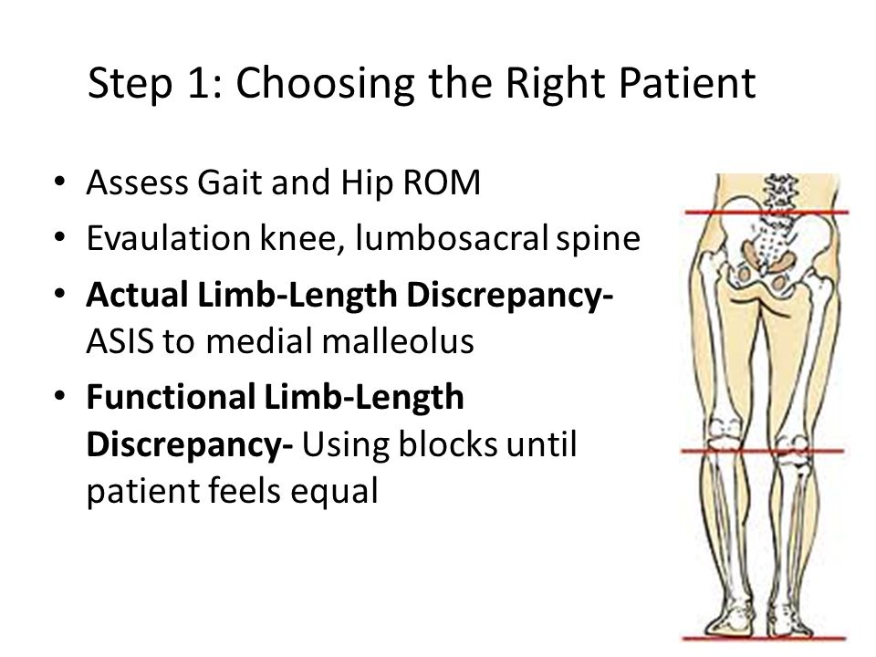 Step 1: Choosing the Right Patient Assess Gait and Hip ROM Evaulation knee, lumbosacral spine Actual Limb-Length Discrepancy- ASIS to medial malleolus Functional Limb-Length Discrepancy- Using blocks until patient feels equal