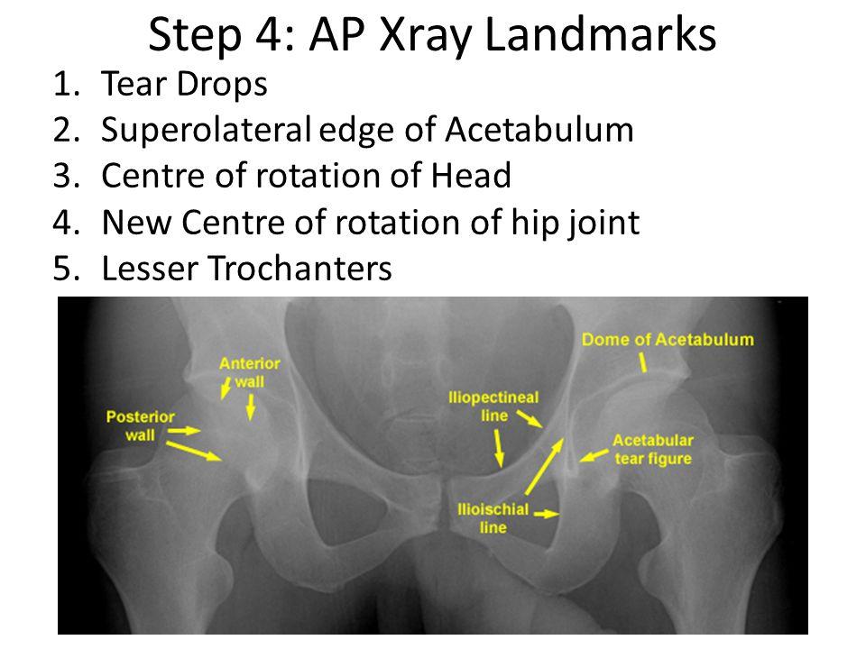 Step 4: AP Xray Landmarks 1.Tear Drops 2.Superolateral edge of Acetabulum 3.Centre of rotation of Head 4.New Centre of rotation of hip joint 5.Lesser Trochanters