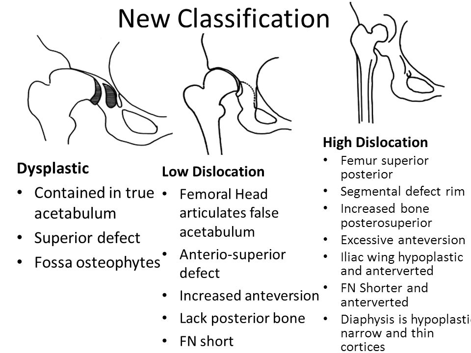 New Classification Dysplastic Contained in true acetabulum Superior defect Fossa osteophytes Low Dislocation Femoral Head articulates false acetabulum Anterio-superior defect Increased anteversion Lack posterior bone FN short High Dislocation Femur superior posterior Segmental defect rim Increased bone posterosuperior Excessive anteversion Iliac wing hypoplastic and anterverted FN Shorter and anterverted Diaphysis is hypoplastic narrow and thin cortices