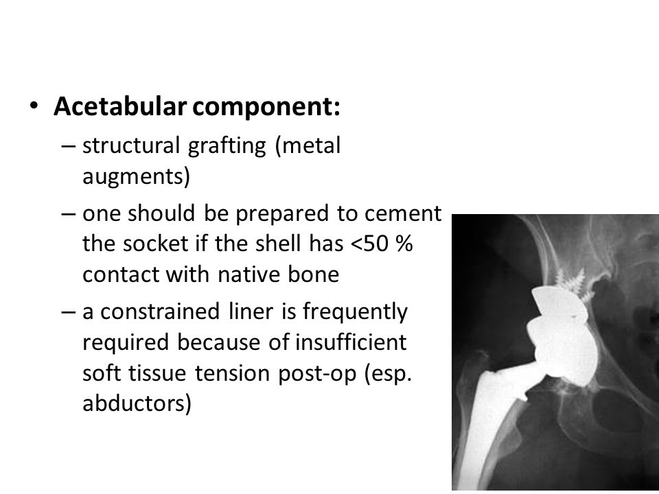 Acetabular component: – structural grafting (metal augments) – one should be prepared to cement the socket if the shell has <50 % contact with native bone – a constrained liner is frequently required because of insufficient soft tissue tension post-op (esp.