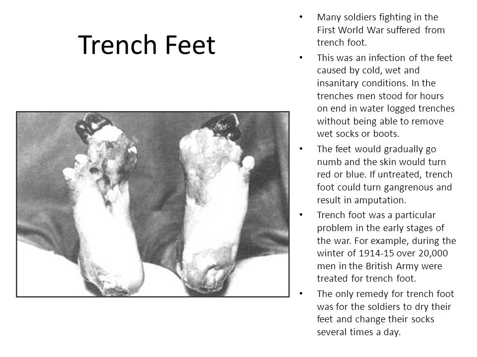 Trench Feet Many soldiers fighting in the First World War suffered from trench foot. This was an infection of the feet caused by cold, wet and insanit