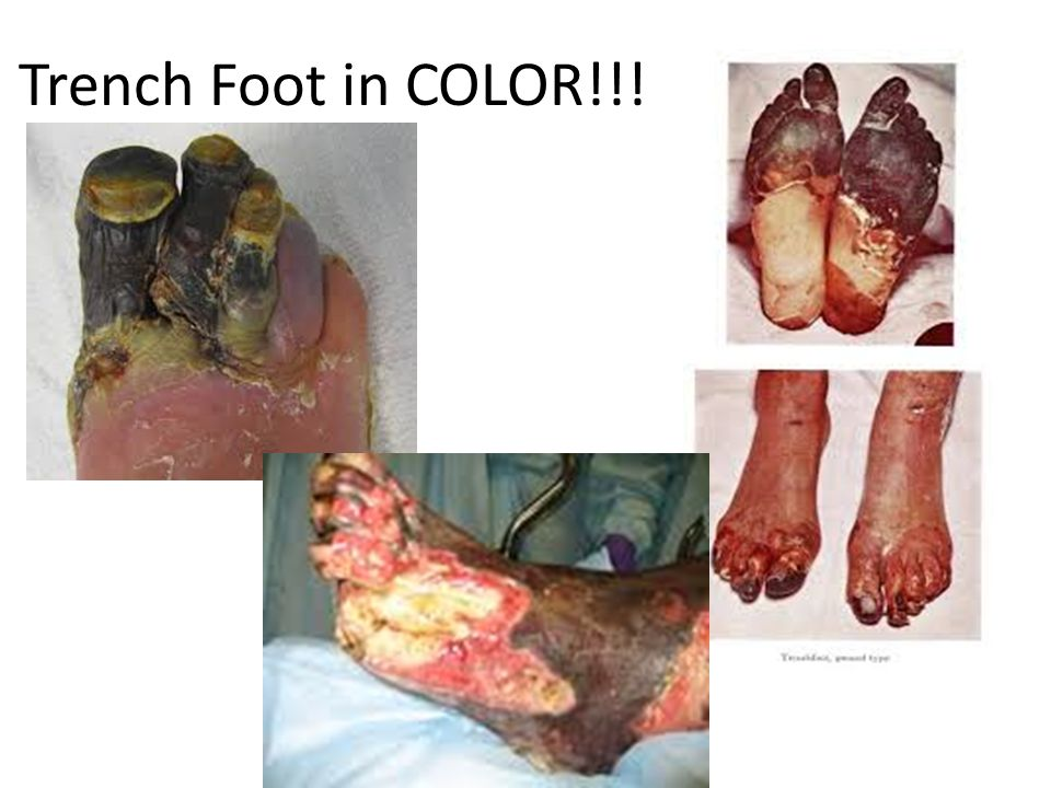 Trench Foot in COLOR!!!