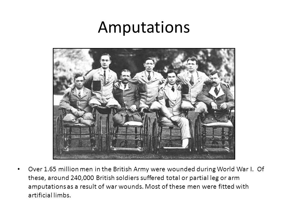 Amputations Over 1.65 million men in the British Army were wounded during World War I.