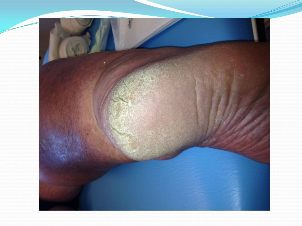 My Main Differential Diagnosis Dry skin (autonomic) Fungus/tinea ??Psoriasis ??Something else that responds to topical steroid If psoriasis, then it is recommended not to debride So, confirming a diagnosis will affect the treatment approach (i.e.