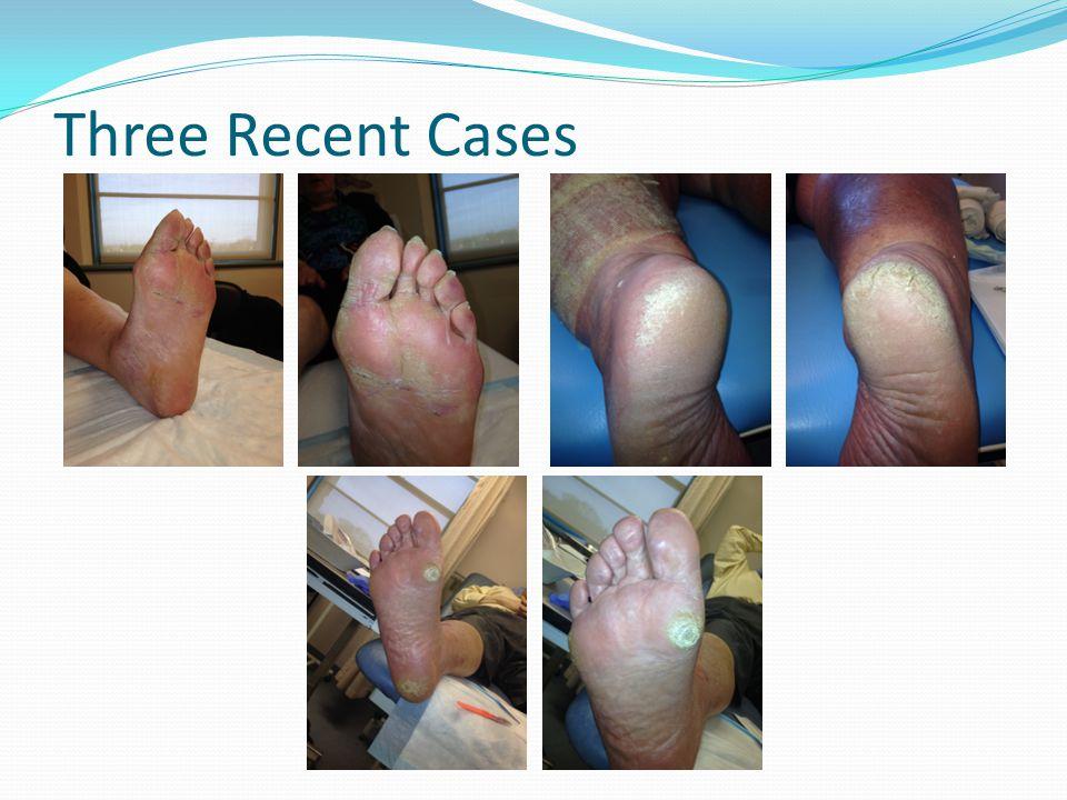 Three Recent Cases