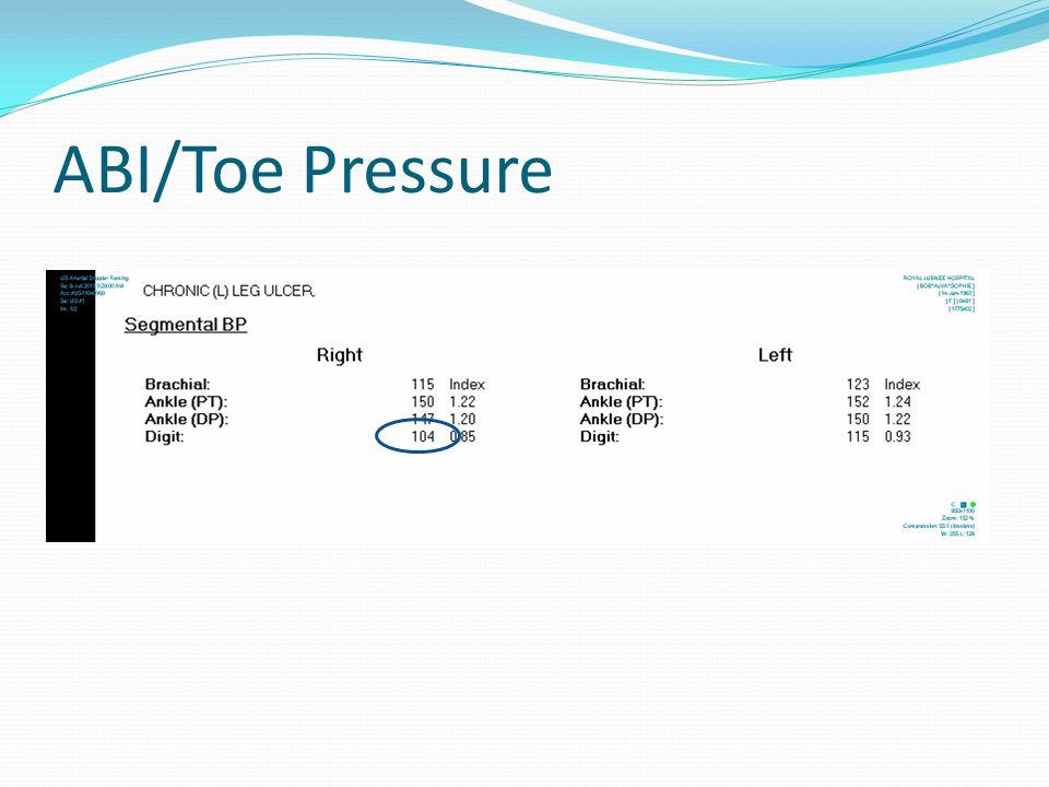 ABI/Toe Pressure