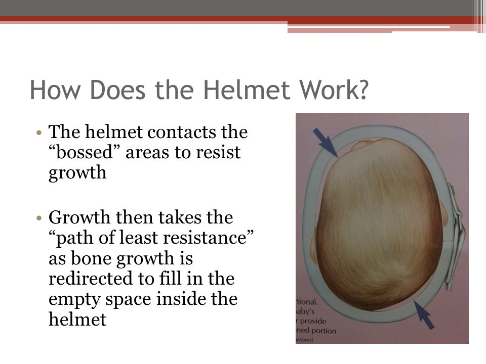 "How Does the Helmet Work? The helmet contacts the ""bossed"" areas to resist growth Growth then takes the ""path of least resistance"" as bone growth is r"
