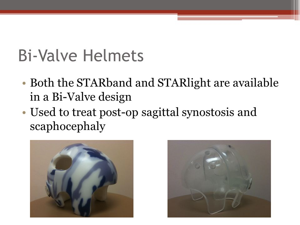 Bi-Valve Helmets Both the STARband and STARlight are available in a Bi-Valve design Used to treat post-op sagittal synostosis and scaphocephaly
