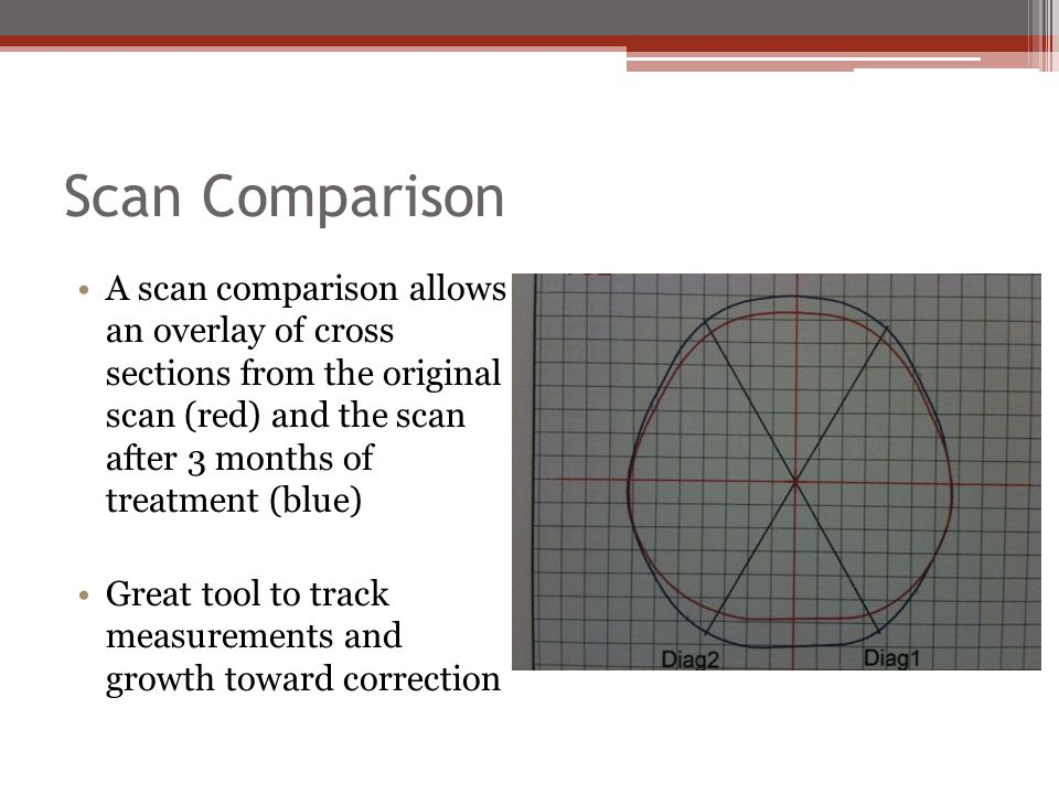 Scan Comparison A scan comparison allows an overlay of cross sections from the original scan (red) and the scan after 3 months of treatment (blue) Great tool to track measurements and growth toward correction