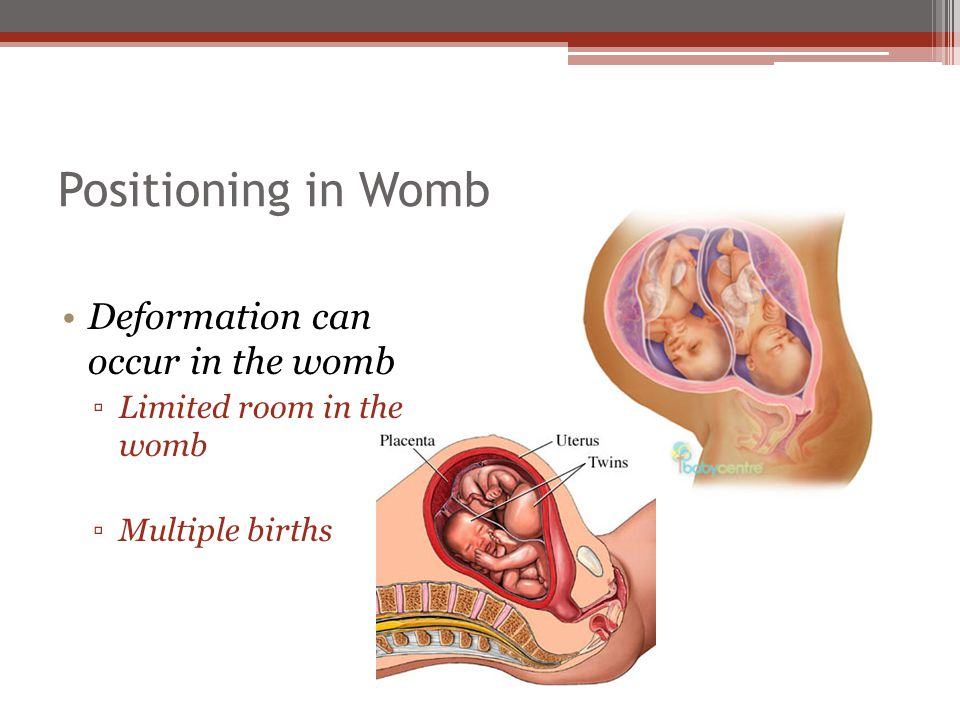 Positioning in Womb Deformation can occur in the womb ▫Limited room in the womb ▫Multiple births