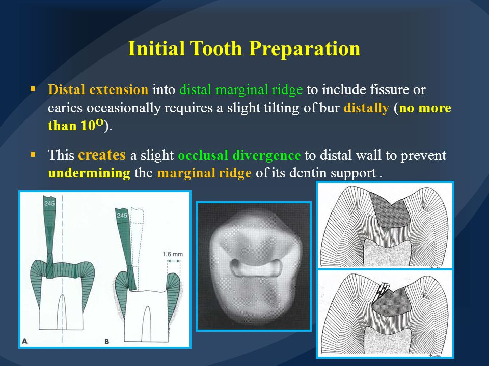 Distal extension into distal marginal ridge to include fissure or caries occasionally requires a slight tilting of bur distally (no more than 10 O )