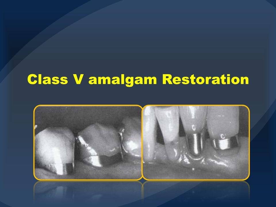 Class V amalgam Restoration